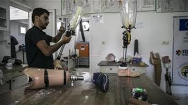 در مرکز ساخت عضو مصنوعی برای مجروحان جنگ سوریه چه میگذرد؟