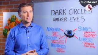 عوامل بوجود آوردن حلقه های سیاه دور چشم