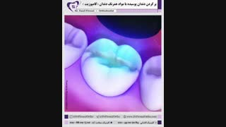 پر کردن دندان با آمالگام | دکتر فاضل فیروزی