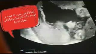 سونوگرافی جنین 27 هفته ای
