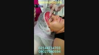 خدمات جوانسازی پوست کلینیک یاس سپید