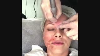 جوانسازی پوست با دستگاه میکرونیدلینگ