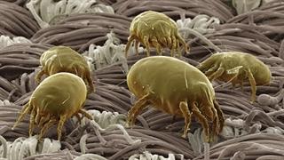 تصاویر ثبت شده فوق العاده توسط میکروسکوپ الکترونی