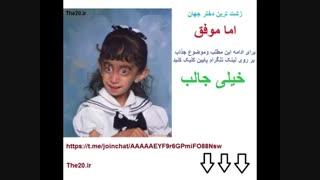 زشت ترین دختر جهان و اما موفق !!!!