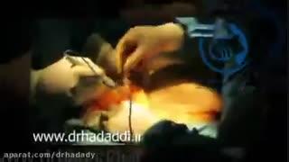فیلم ابدومینوپلاستی