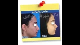 نمونه جراحی بینی دکتر حدادی