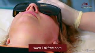 درمان لکه های پوستی با لیزر الکساندرایت(Alexandrite Laser)