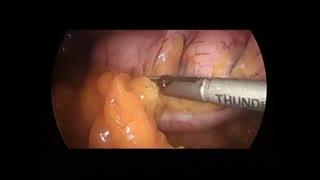 عمل جراحی اسلیو معده ی لاپاروسکوپیک توسط دکتر زهره ضرغامی فرد