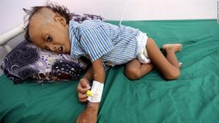 گزارش CNN از وضعیت وحشتناک کودکان در یمن
