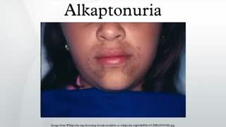 بیماری ادرار سیاه یا آلکاپتونوری و درمان آن