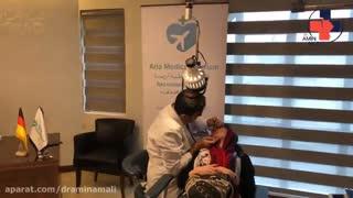 داستان جراحی بینی دختر آلمانی نزد دکتر امین آمالی