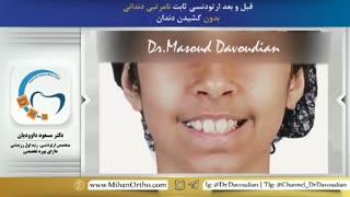 ارتودونتیست تهران | دکتر داودیان