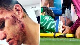10 آسیبدیدگی خطرناک دروازهبانان در فوتبال