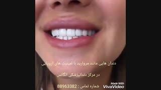 لمینیت دندان | لمینیت سرامیکی | لمینیت کامپوزیتی | ونیر کامپوزیت | کامپوزیت ونیر | پرسلن کامپوزیت | پرسلن زیرکونیا