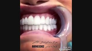 تفاوت لمینیت سرامیکی با لمینیت کامپوزتی   علت تغییر رنگ لمینیت کامپوزیتی   مدل های لمینیت دندان