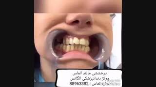 فیلم لمینیت دندان   آموزش لمینیت دندان   بهترین مارک کامپوزیت دندان   مزایای لمینیت دندان   مزایای کامپوزیت دندان