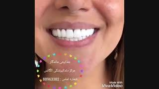 بهترین دندانپزشکی مرکز تهران   بهترین دندانپزشکی  در تهران   بهترین دندانپزشکی غرب تهران   بهترین متخصص لمینیت در تهران