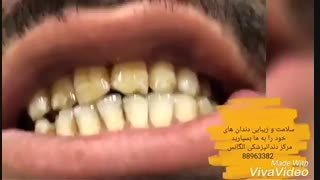 مراحل ترمیم لمینیت دندان | ترمیم ونیر کامپوزیت | قیمت ونیر کامپوزیت | قیمت لمینیت سرامیکی | لامینیت های دندانی