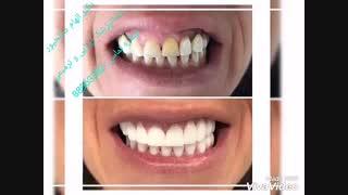 دندانپزشک زیبایی   دندانپزشک ترمیمی   بهترین فوق تخصص دندانپزشکی زیبایی   بهترین دندانپزشک زیبایی در تهران