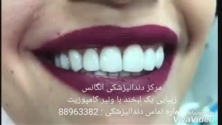 عصب کشی دندان   روت کانال دندان   اندو   مراحل عصب کشی دندان   عصب کشی دندان بدون درد   پر کردن دندان با آمالگام