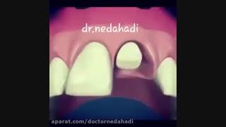 روش کاشت ایمپلنت دندان