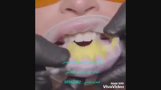 ایا لمینیت کردن دندان درد دارد | درد در هنگام لمینیت کردن دندان | علت تراش دادن دندان برای لمینیت سرامیکی