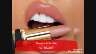 دندانپزشکی خیلی خوب در مرکز تهران   دندانپزشکی خیلی خوب غرب تهران   دندانپزشکی خیلی خوب میدان ولیعصر   دندانپزشکی خوب فاطمی