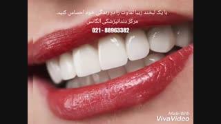 بهترین دندانپزشکی زیبایی در مرکز تهران   بهترین دندانپزشک زیبایی غرب تهران   بهترین دندانپزشک زیبایی و ترمیمی در تهران