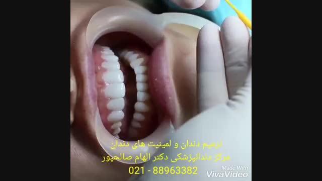 ترمیم دندان شکسته | علت شکستن لمینیت سرامیکی | علت شکستن لمینیت کامپوزتی | علت تغییر رنگ لمینیت های دندانی