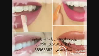 ایمپلنت دندان   کاشت دندان   بلیچینگ دندان   اصلاح طرح لبخند   لمینیت دندان   کاشت نگین دندان   روکش دندان   لبخند هالیوودی