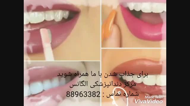 ایمپلنت دندان | کاشت دندان | بلیچینگ دندان | اصلاح طرح لبخند | لمینیت دندان | کاشت نگین دندان | روکش دندان | لبخند هالیوودی