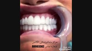 شرایط لمینیت کردن دندان | آیا دندان پر شده را میشود لمینیت کرد | کامپوزیت کردن دندان های پر شده | ترک خوردن لمینیت دندان