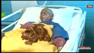 امید به زندگی بیماران سوختگی با پیوند پوست در شیراز