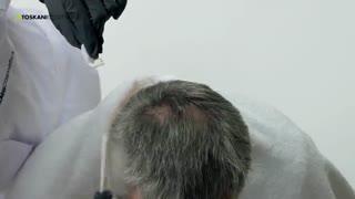 محلول مزوتراپی توسکانی برای بهبود و تقویت رشد مو در زنان