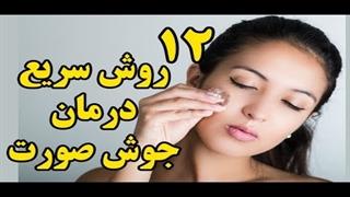 ۱۲  روش سریع درمان جوش صورت