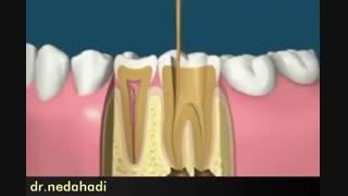 پوسیدگی دندان و توضیحات خانم دکتر ندا هادی درباره آمالگام و پوسیدگی