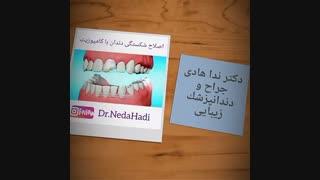 اصلاح شکستگی دندان با کامپوزیت