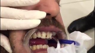 زیبایی 4 واحد ونیر کامپوزیت|کلینیک دندانپزشکی مدرن