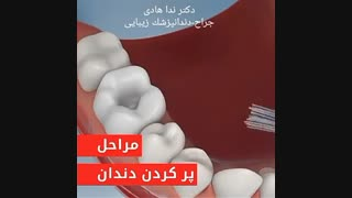 پر کردن دندان ها   دکتر ندا هادی دندانپزشک زیبایی و ترمیمی