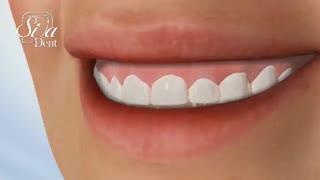 بهترین کلینیک | کلینیک دندانپزشکی سیمادنت