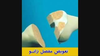 فیلم تعویض مفصل زانو