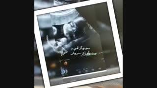 سونوگرافی صورت جنین ١٧ هفته