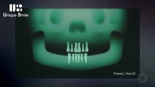 تکامل دندان های شیری | دکتر لیلا عطایی