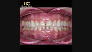 کیفیت لبخند | دکتر لیلا عطایی
