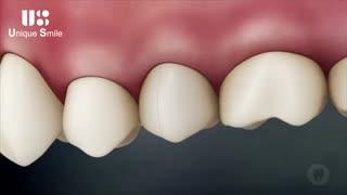 روکش دندان | دکتر لیلا عطایی