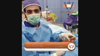 درمان ز خم پای دیابتی