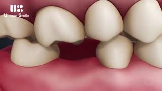 عوارض از دست دادن دندان | دکتر لیلا عطایی