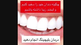 اهمیت بلیچینگ دندان