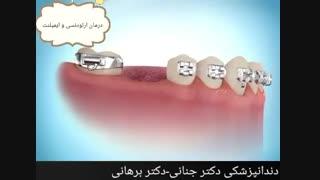 درمان همزمان ایمپلنت و ارتودنسی دندان