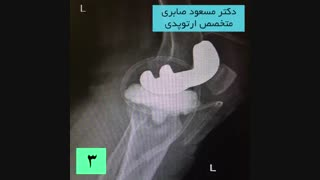 درمان عفونت بعد از تعویض مفصل زانو